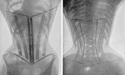 Lời cảnh tỉnh với cơ thể con người khi đeo gen nịt bụng