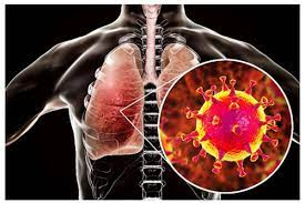 Tìm ra liệu pháp tiêu diệt 99,9% virus SARS-CoV-2 trong phổi