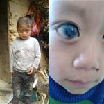 Cậu bé H'Mông đứng trước nguy cơ bị mù mắt vì gia cảnh khó khăn, không có tiền đi khám bệnh