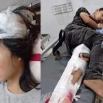 Gia cảnh khốn khó của 2 chị em bị tai nạn không có tiền điều trị: Bố đã bỏ đi, mẹ mất vì ung thư