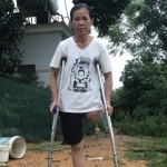 Lời kêu cứu xót xa của người phụ nữ mất 1 chân vì tai nạn lao động