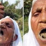 Lý giải về hội chứng Pica: Khi con người có thể ăn đất cát thay cơm mỗi ngày