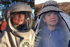 Căn bệnh lạ khiến cậu bé 11 tuổi phải sống cuộc đời như ma cà rồng